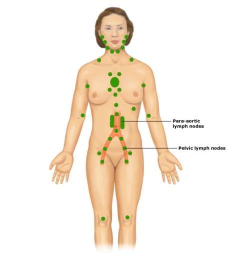 lymph_nodes_female